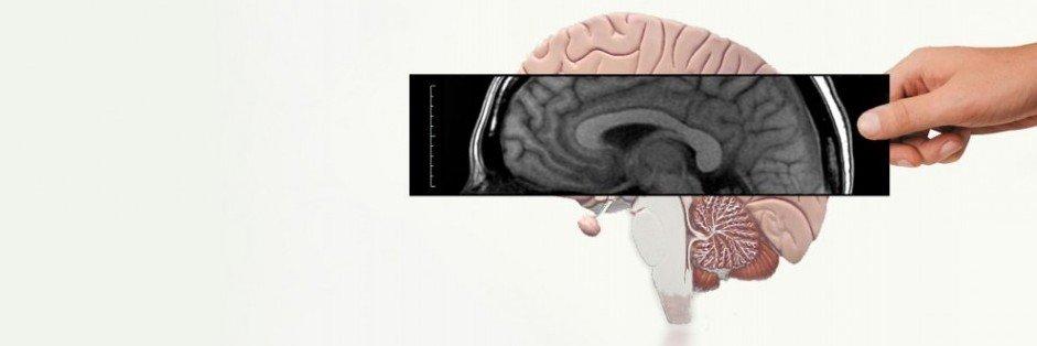 neuroradio e1351899835771