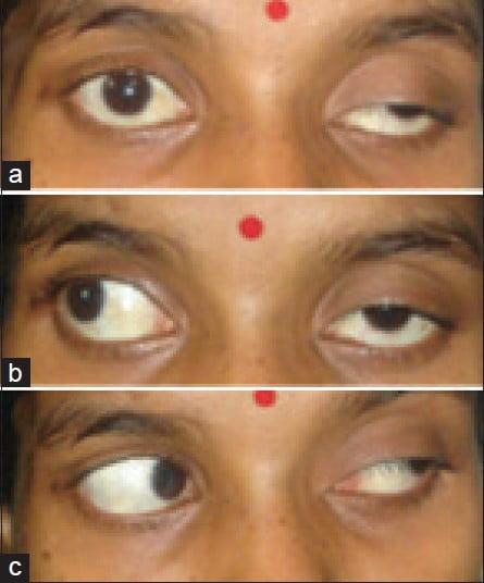 Paralisi del nervo oculomotore completa