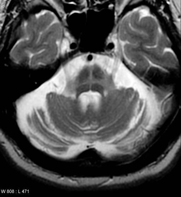 MSA - Atrofia Multisistemica in Risonanza Magnetica