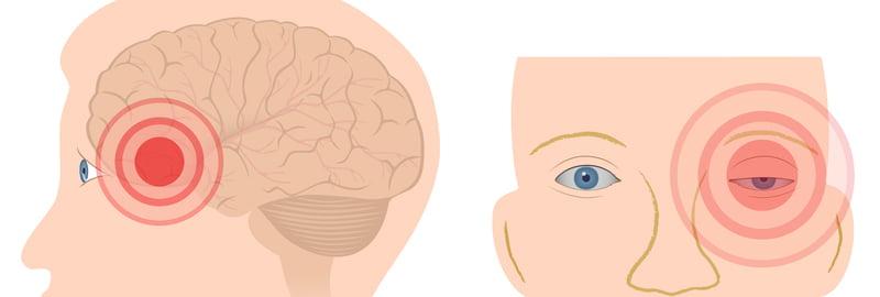 Cefalea a grappolo: distribuzione del dolore