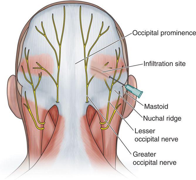 Blocco del nervo occipitale