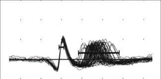 Elettromiografia di singola fibra