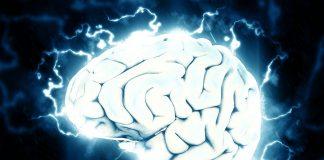 Emicranie con aura atipica